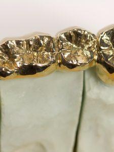 Juwelier Schulz - Dentalgold